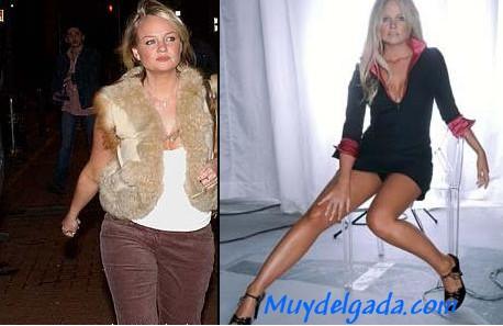 Gorda y delgada antes y despues de adelgazar