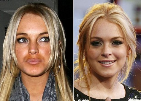 Labios operados de Lindsay Lohan